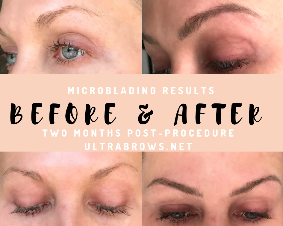 Is Microblading Worth It? | Final Results with Ultra Brows | Two Months Post Procedure Update | BreeAtLast.com